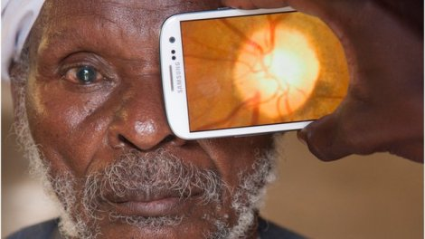 La app che permette una scansione diagnostica ottica di livello professionale. Consente di valutare lo stato di salute della retina e del nervo ottico. Ha avuto enorme risalto mediatico per l'applicazione economica, semplice ed efficace in contesti di emergenza o scarsità di infrastrutture mediche.